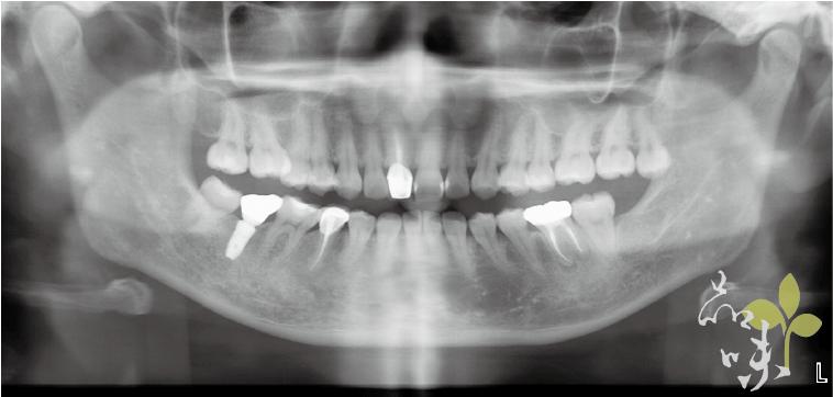 術後全口X光