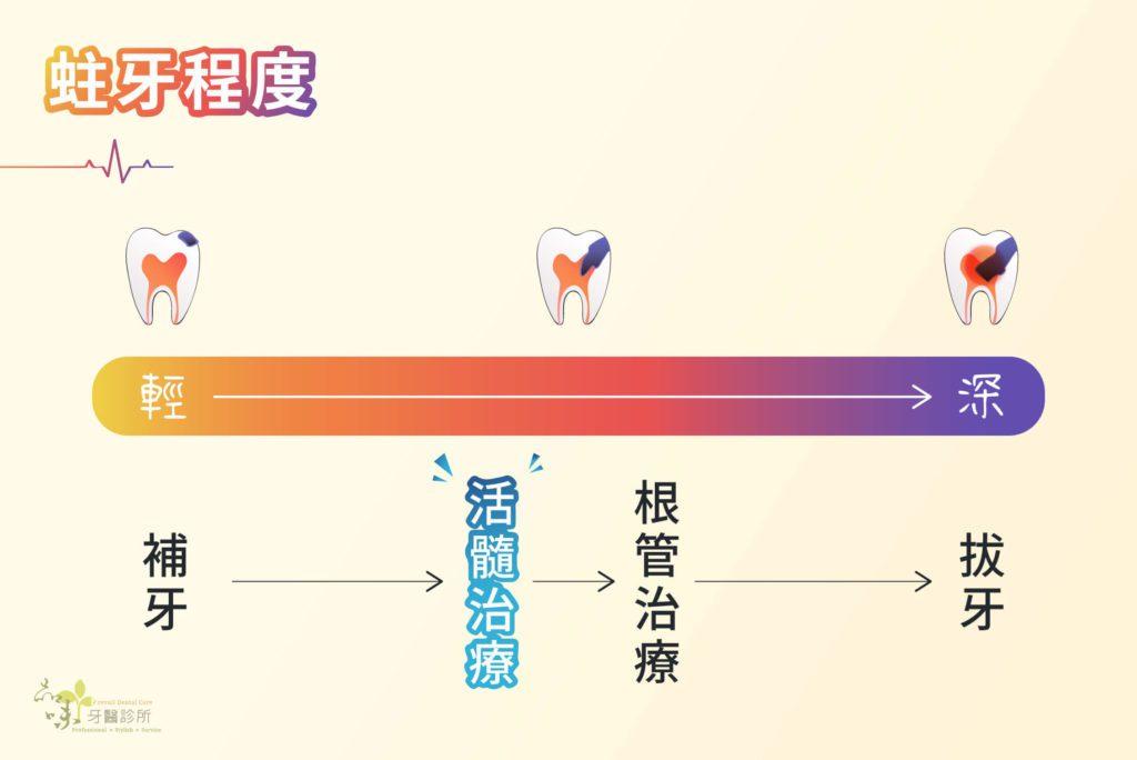 蛀牙進程圖與適合的治療方式