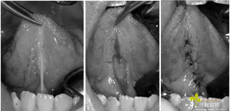 舌繫帶過短手術圖