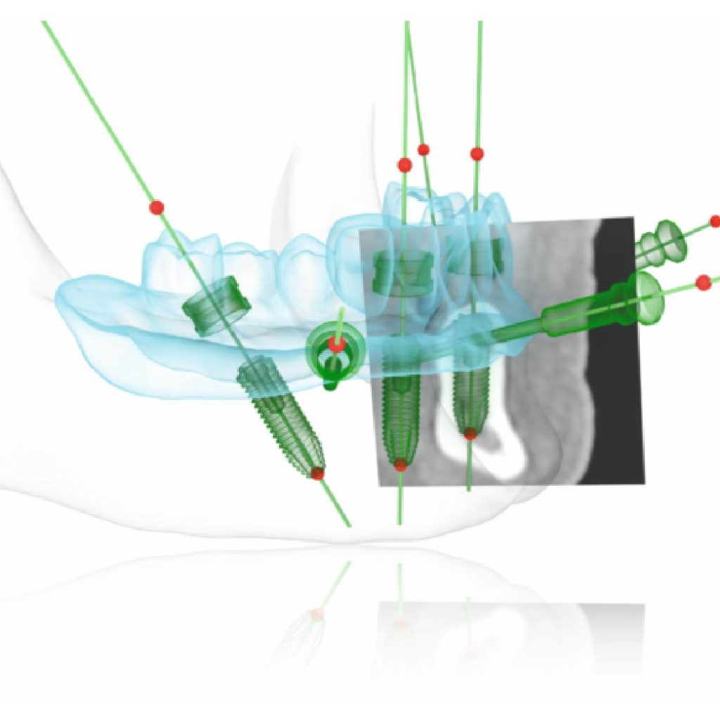 AO4手術醫師利用數位方式植入植體