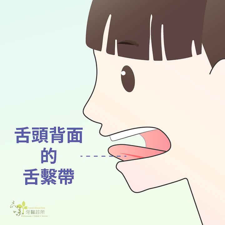 舌頭背面的舌繫帶