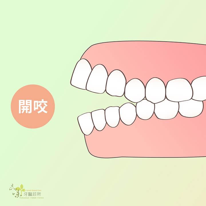前牙開咬的側面牙齒排列