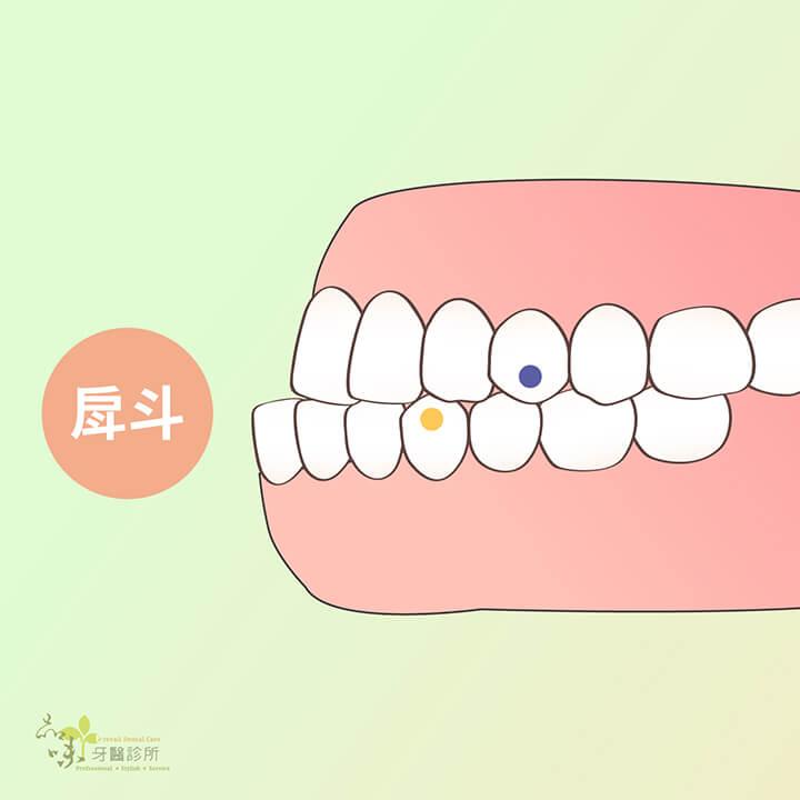 戽斗的側面牙齒咬合排列