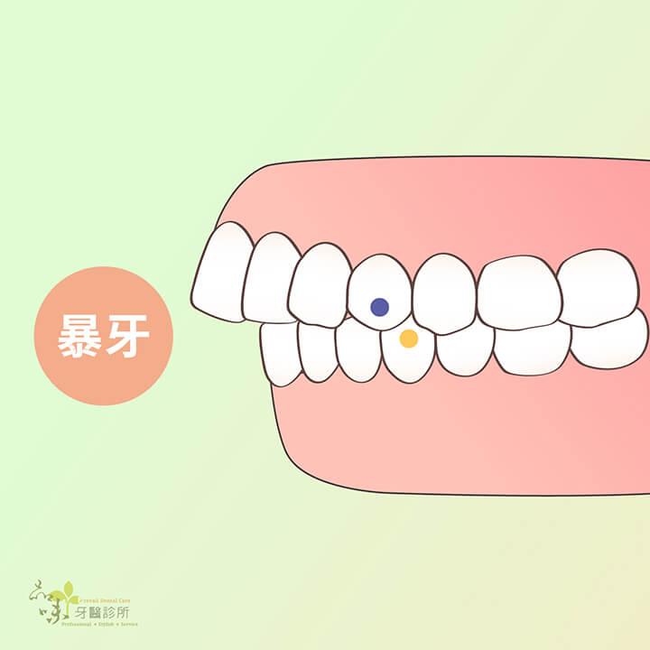 暴牙的側面咬合