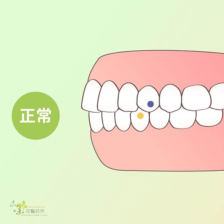 咬合正常的側面牙齒排列