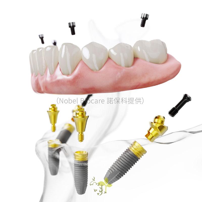 下顎燦金植體的AO4假牙