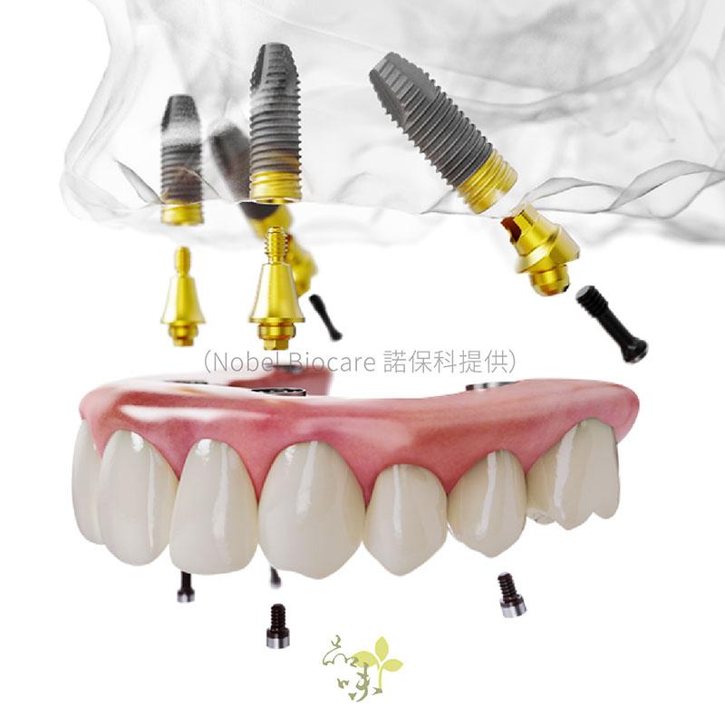 上顎燦金植體的AO4假牙