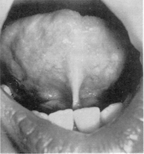 舌繫帶過短中等程度