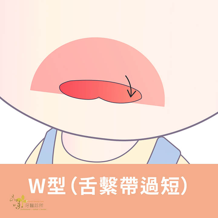 舌繫帶過短的吐舌