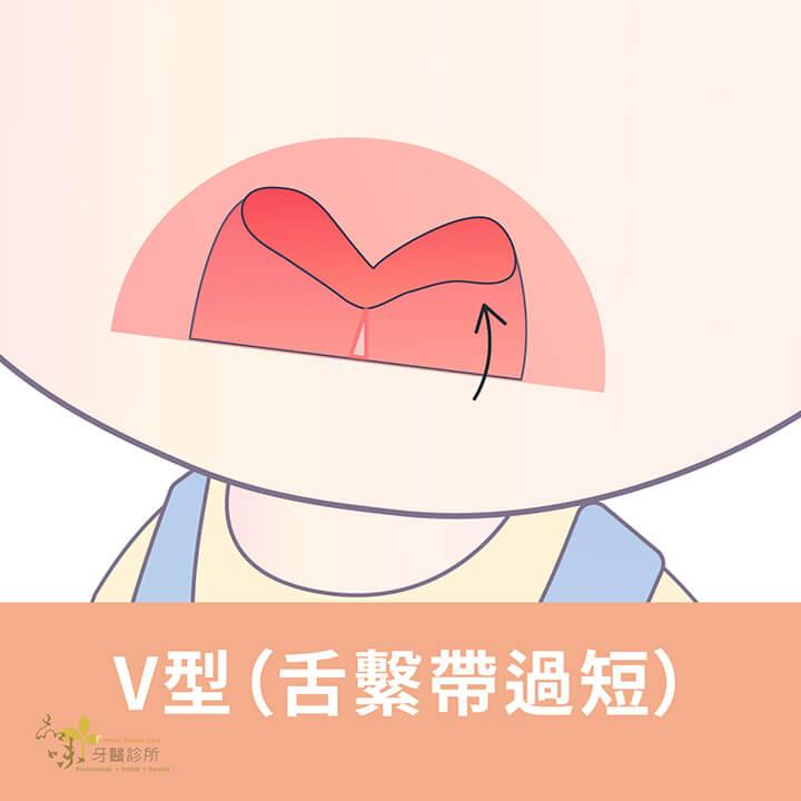 舌繫帶過短的V型捲舌