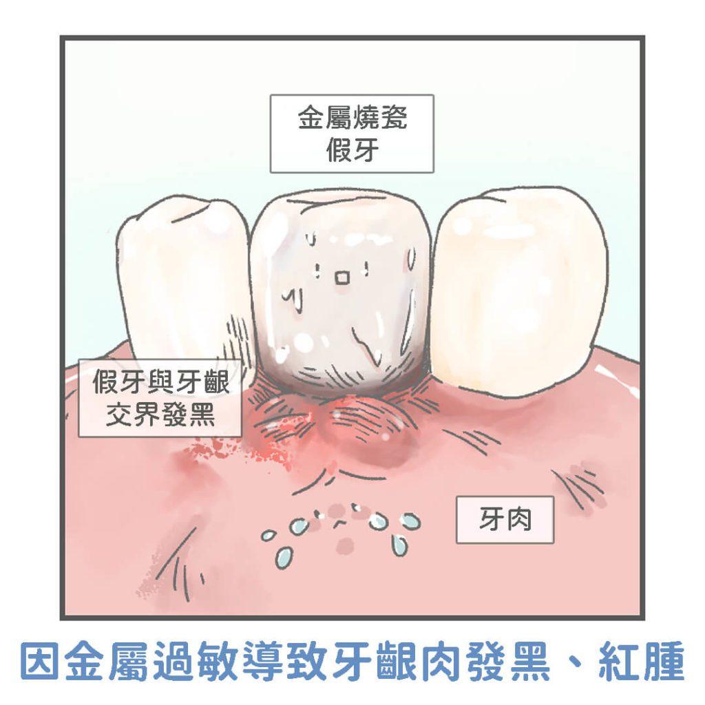 不良金屬假牙導致牙齦發黑過敏