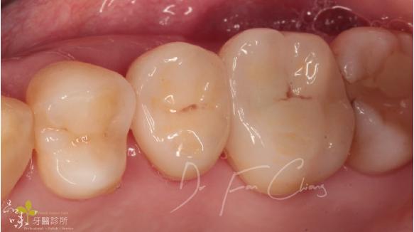 裝上全瓷冠後牙術後照片