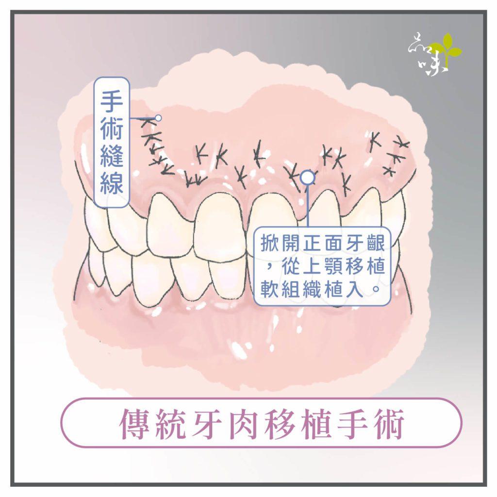 掀開牙齦植入上顎移植軟組織的縫線