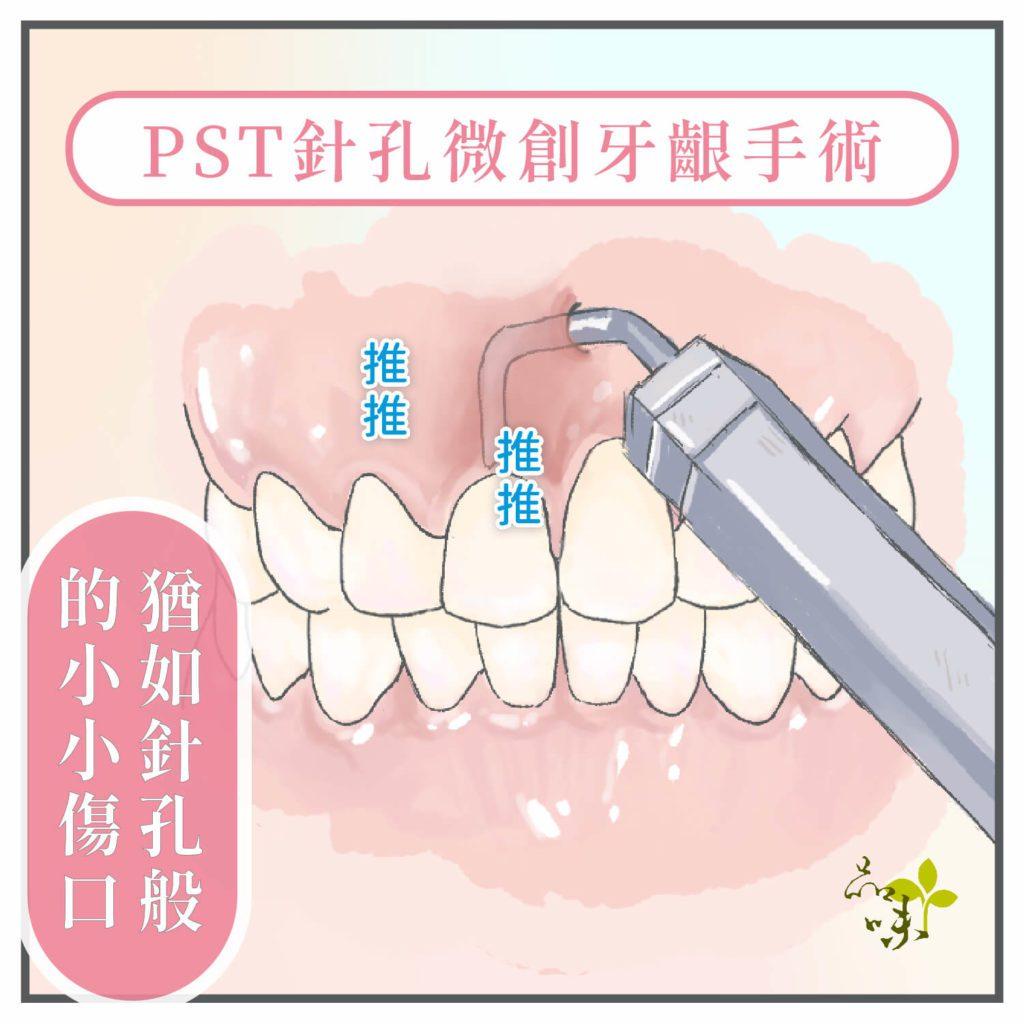 品味牙醫針孔微創牙齦再生手術