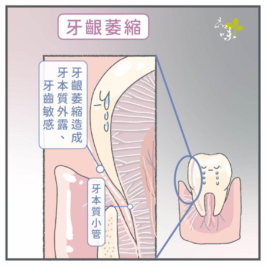 牙齦萎縮造成牙本質外露