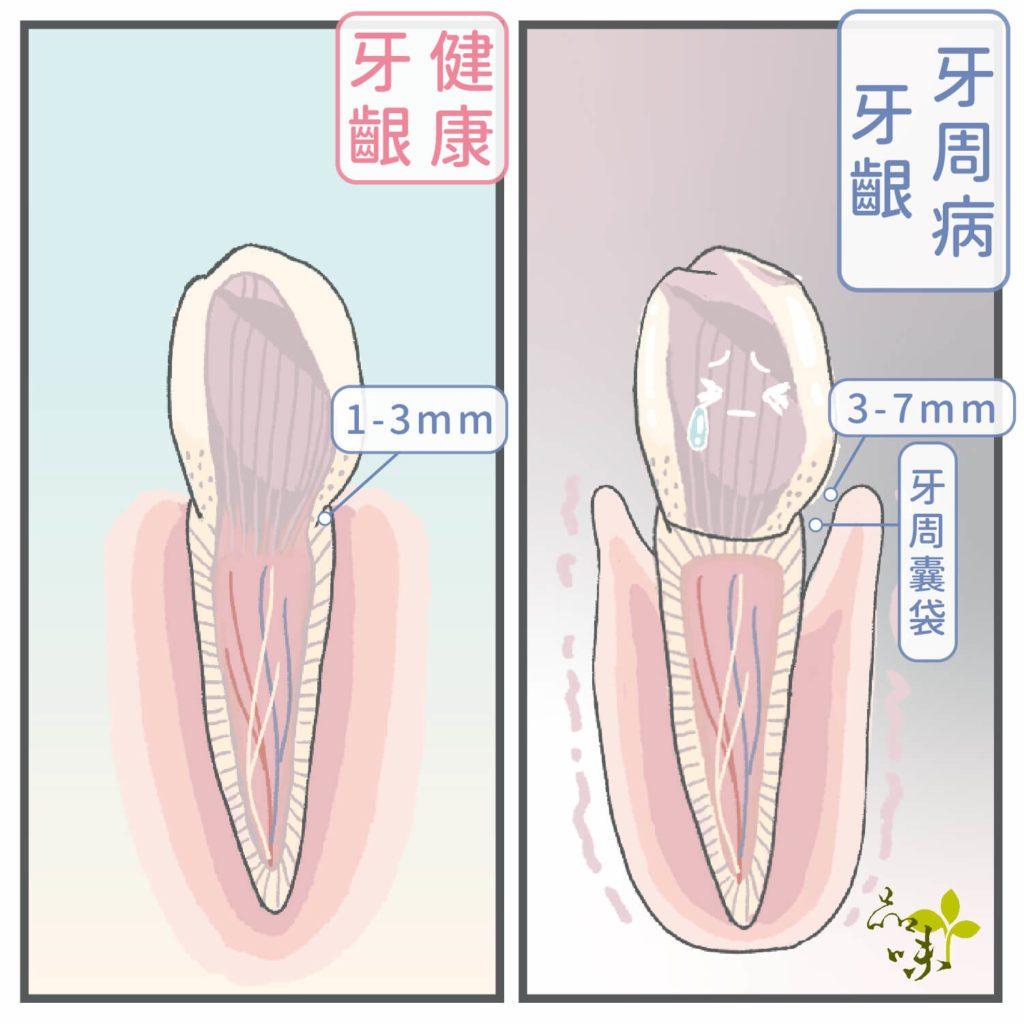 牙周病牙齦的牙周囊袋深度3-7mm