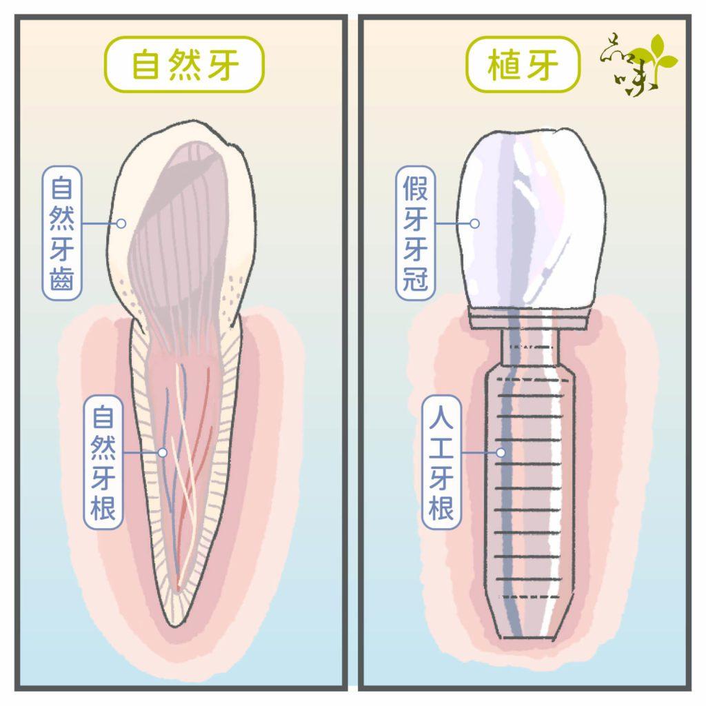 自然真牙與植牙剖面圖比較