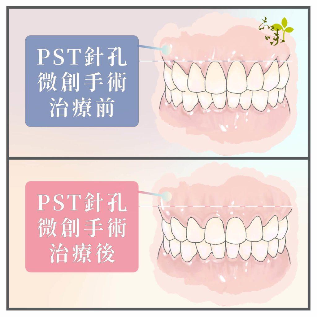 針孔微創牙齦修補手術術前術後對比