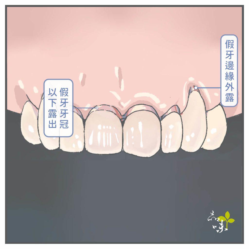 假牙邊緣外露插圖