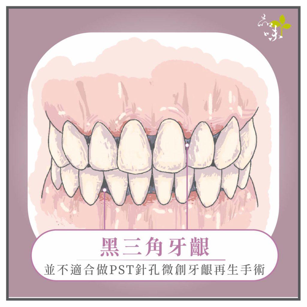 黑三角牙齦正面全口插圖