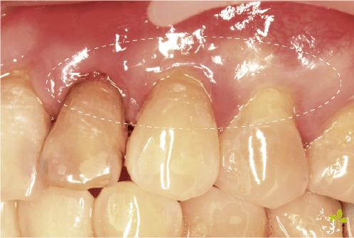 上顎三處牙齦再生手術術後案例照片