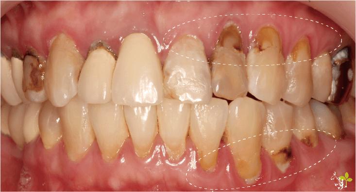 全口左側牙齦再生手術術前案例照片
