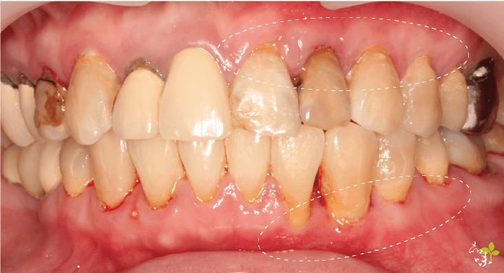 全口左側牙齦再生手術術後案例照片