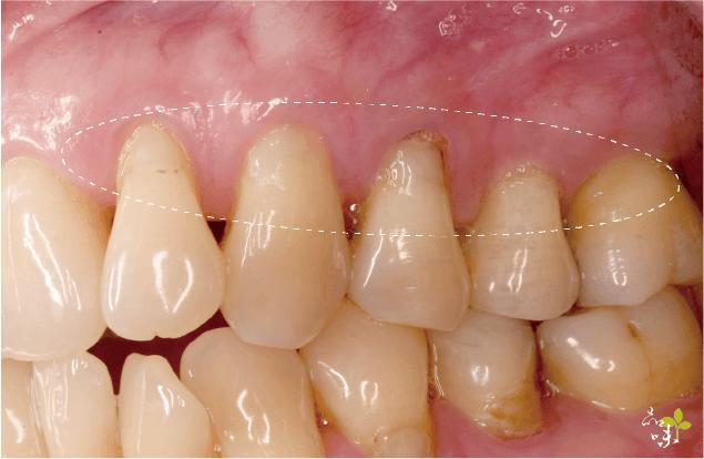 上顎五顆牙齦萎縮案例照片