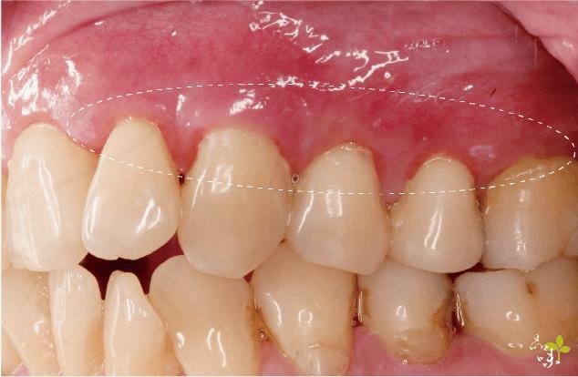 上顎五顆牙齦針孔微創再生手術後案例照片