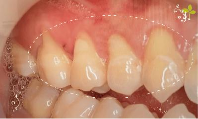 牙齦萎縮齒頸部露出