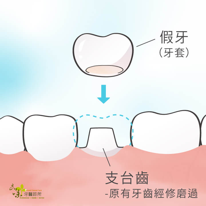 假牙裝戴在支台齒上示意圖
