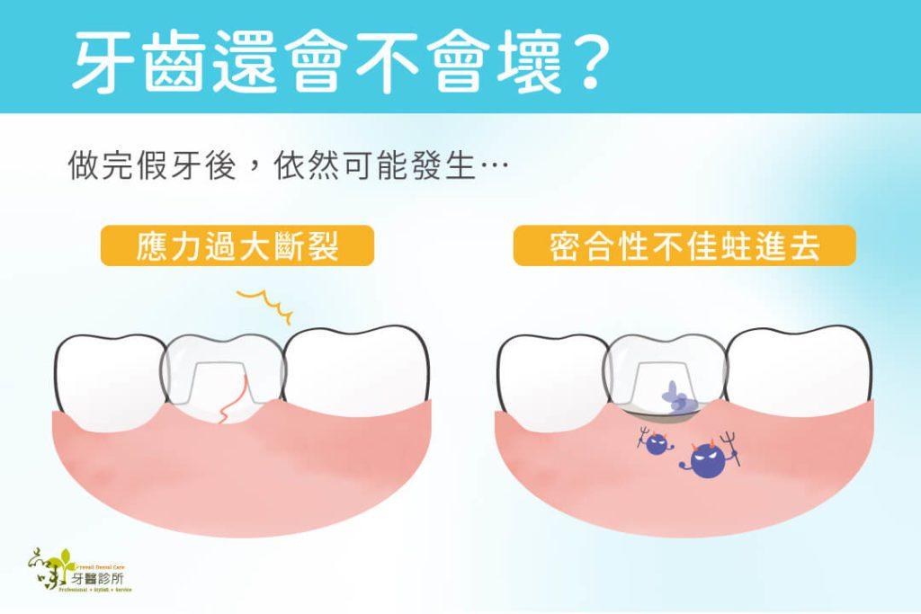 根管治療後裝戴假牙,牙齒仍可能因應力過大斷裂,或密合性不佳蛀進去